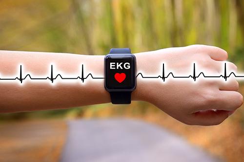 Schon lange mehr als nur eine Armbanduhr: Smartwatches gibt es seit einiger Zeit z. B. auch mit EKG-Funktion.